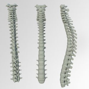 Your Spine Is Not Straight!
