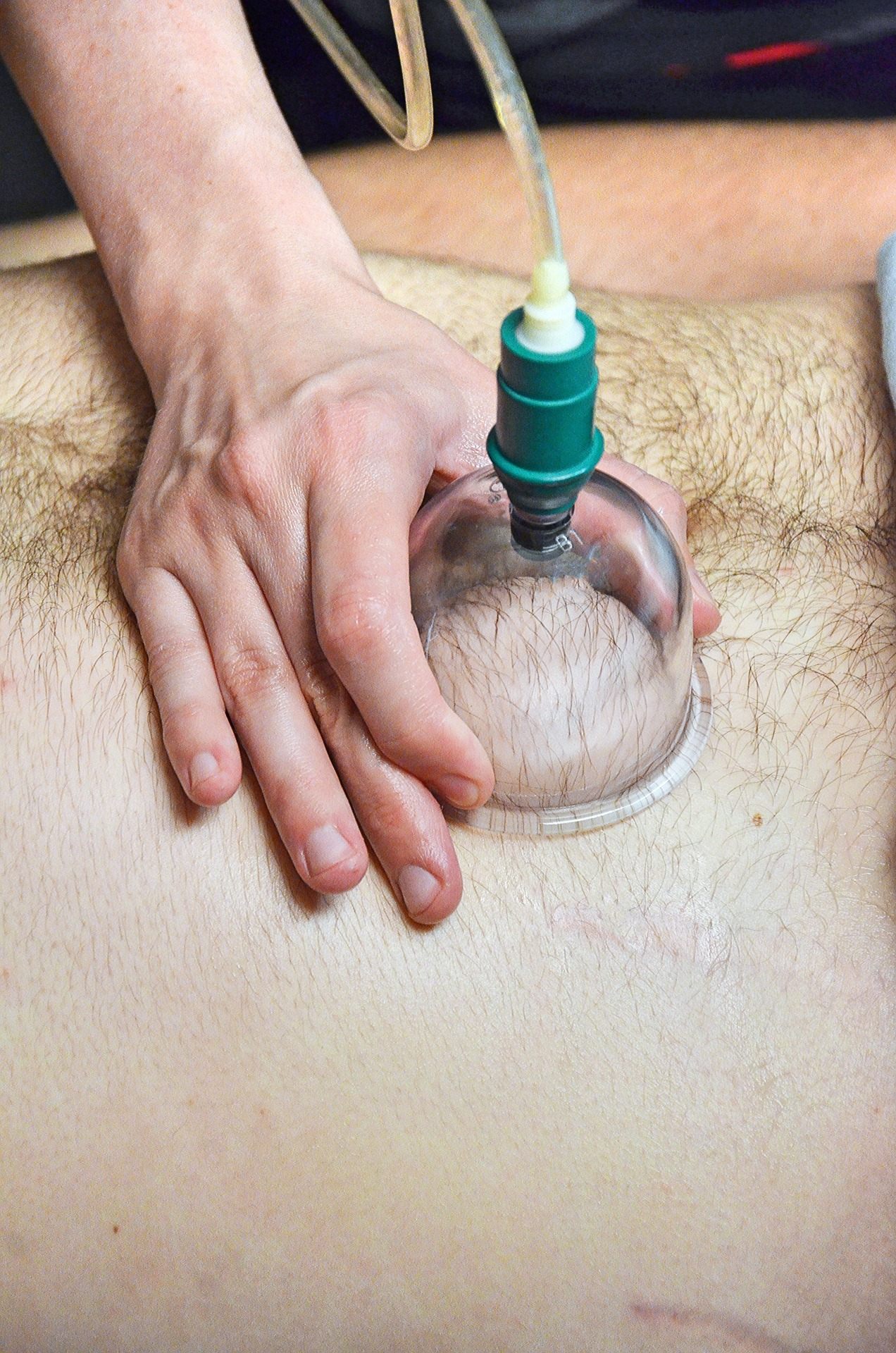 Believe It Or Not, A Suction Cup Is The Reason For Those Welts!