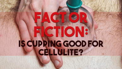 Fact Or Fiction Is Cupping Good For Cellulite