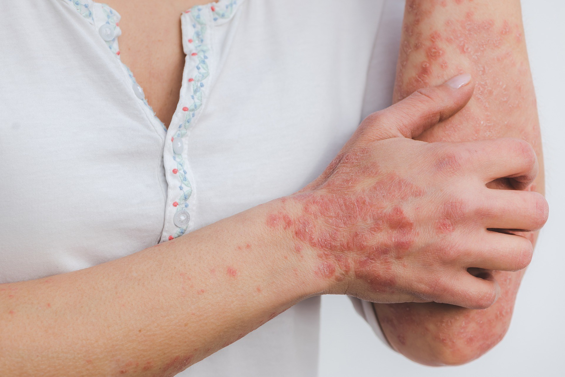 This Is What Psoriasis Looks Like