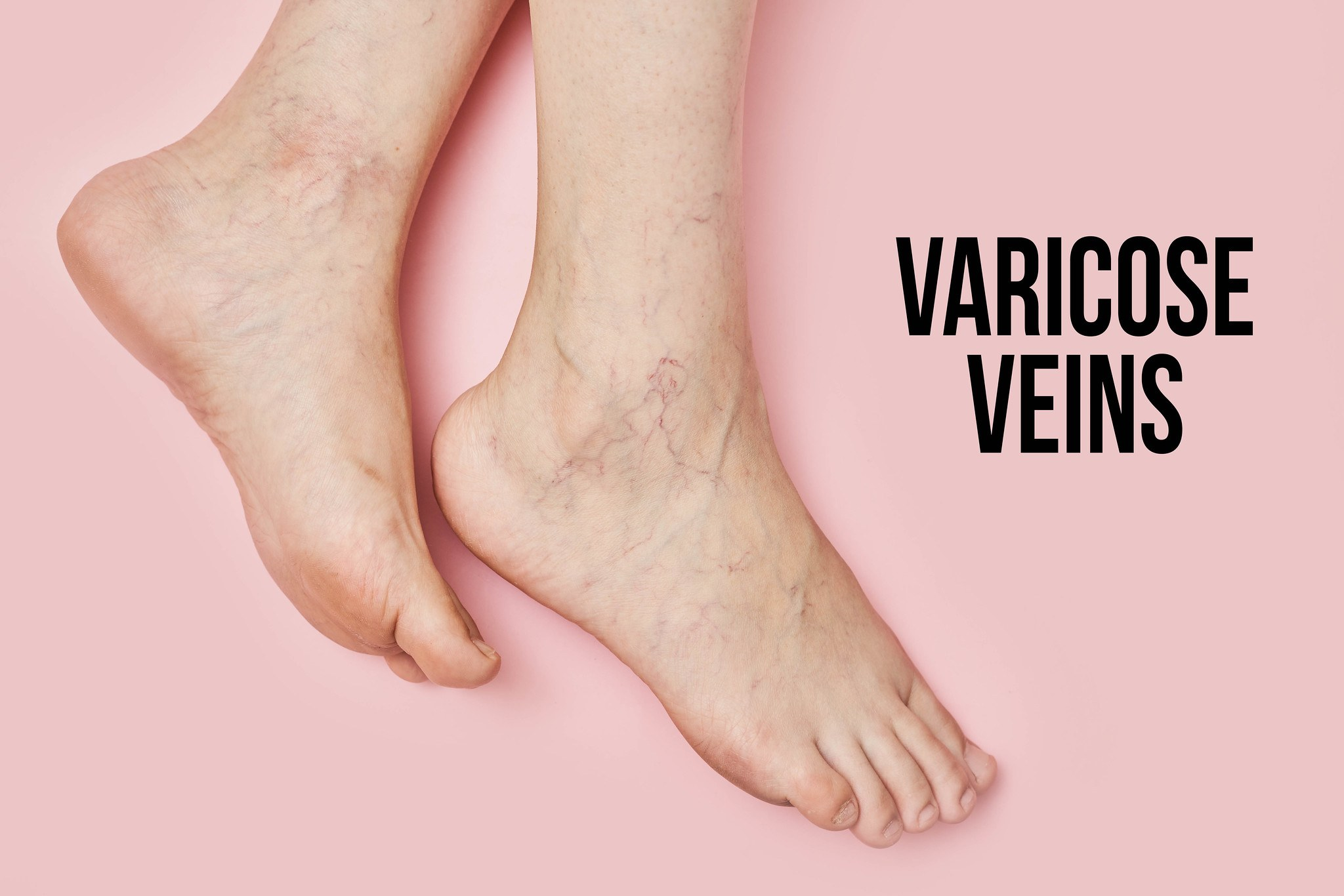 Here's What Varicose Veins Looks Like