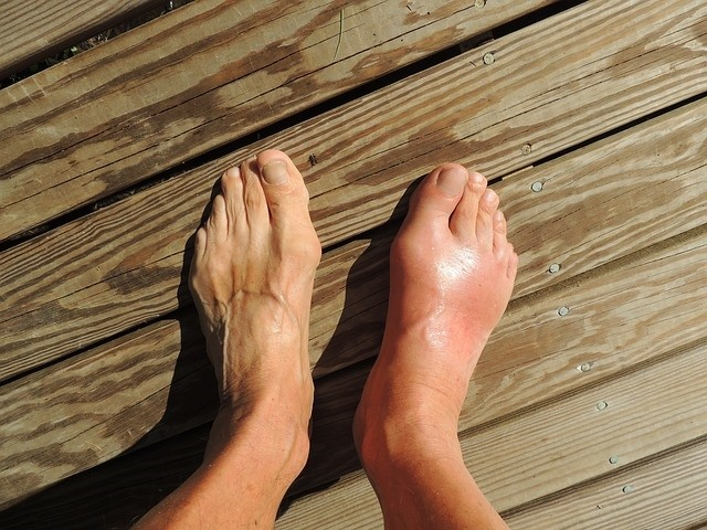 How Self Conscious Are You About Your Bunions